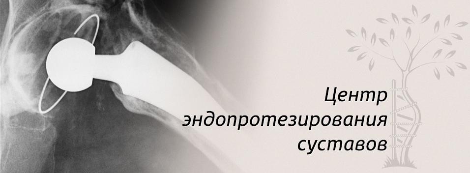 Центр эндопротезирования суставов